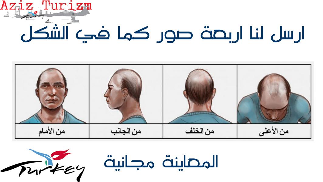 معاينة-زراعة-الشعر